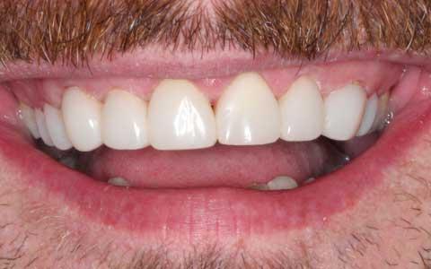 Bagaiamana Cara Memutihkan Gigi Kuning Yang Membandel Ini Tipsnya