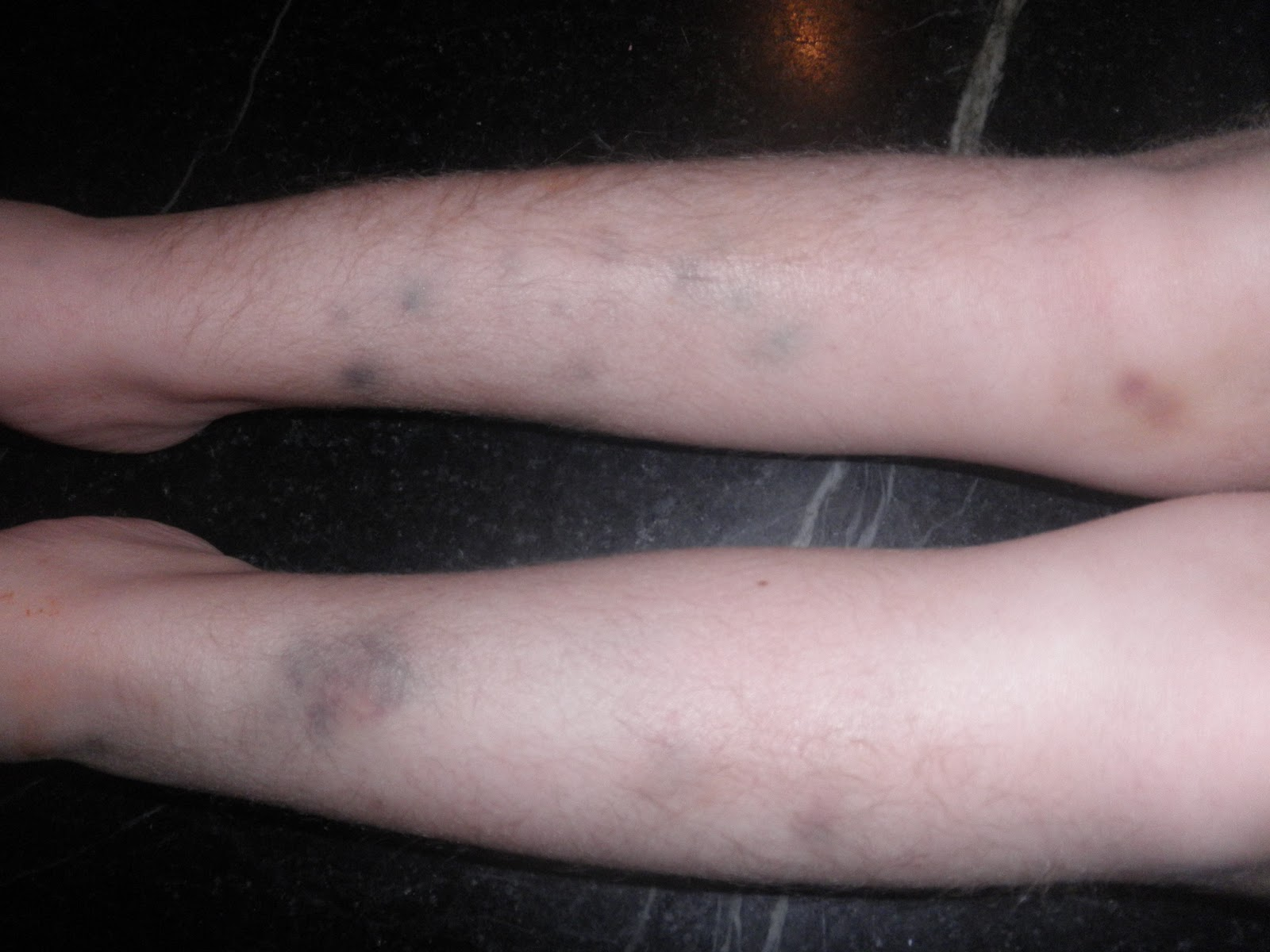Images of Arm Bruises For No Reason - #rock-cafe