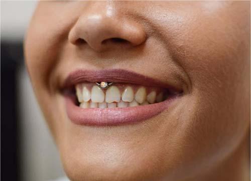 taşlı smiley piercing