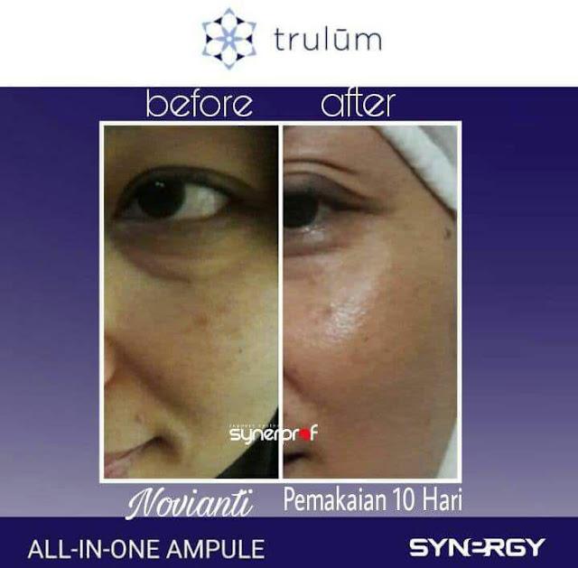 Bebas Bopeng Bekas Jerawat, Flek Hitam Tanpa Harus Laser Atau Ke Tempat Skin Care Di Wamesa Teluk Wondama