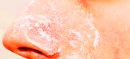 Tips Menghilangkan Komedo Dengan Garam