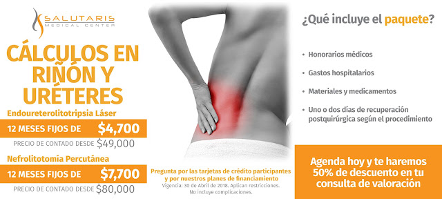 Paquete Cirugia Calculos Renales Riñon Ureteres Litotripsia Percutanea Guadalajara Mexico