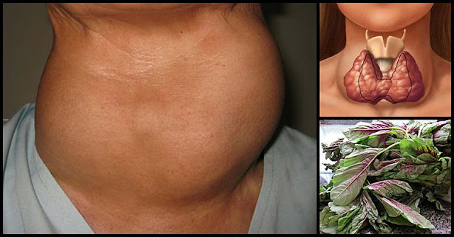 Common Remedies And Natural Ways To Shrink Goiter