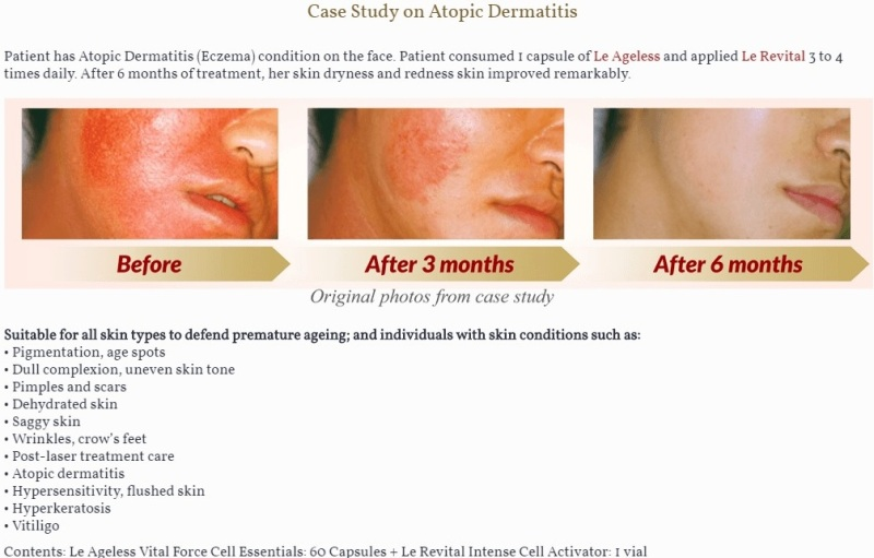 le revital intense cell activator atopic dermatitis eczema