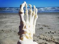 Aneh! Wanita Ini Buat Akun Instagram Untuk Potongan Tulang Kakinya, Ternyata Kisahnya Bikin Sedih