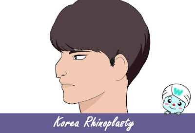 Best Rhinoplasty in Korea: Escape From Witch Nose