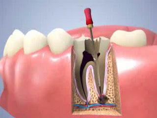 chữa tủy răng có đau lắm không