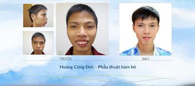 Điểm chú ý về công nghệ thẩm mỹ hàm mặt và dịch vụ phẫu thuật hàm hô