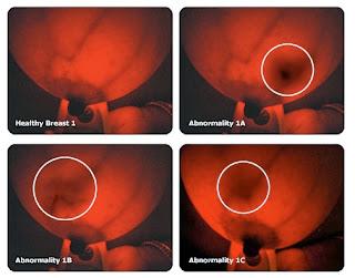 Contoh Hasil Deteksi Alat Breast Light