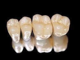 Độ bền răng sứ titan khoảng mấy năm?