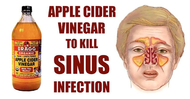How To Kill Sinus Infection Within Minutes With Apple Cider Vinegar!