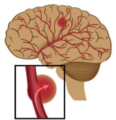 Stroke-perdarahan-otak