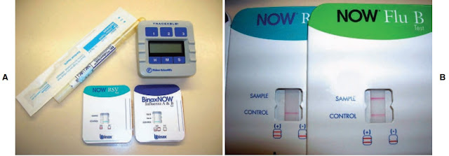 Card format rapid immunochromatographic membrane assay