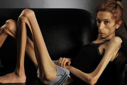 Waspadai Efek Buruk Akibat Diet Terlalu Ketat