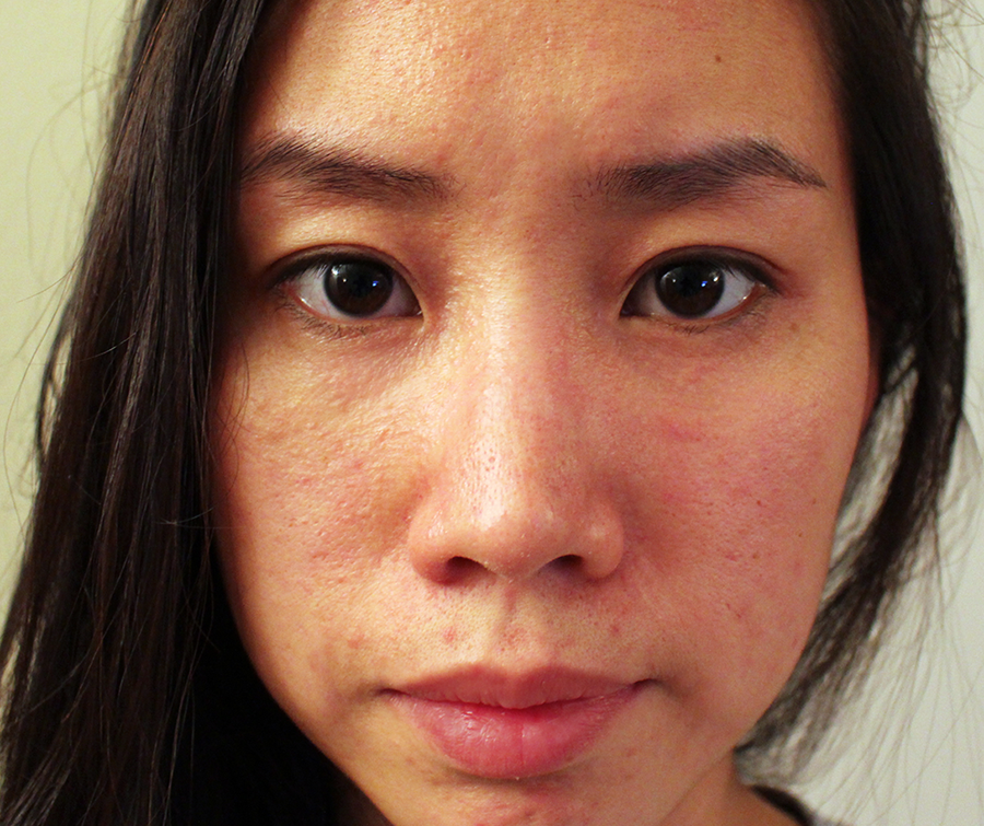 ... : Kate Somerville Oil Free Moisturizer Allergic Reaction | My Story