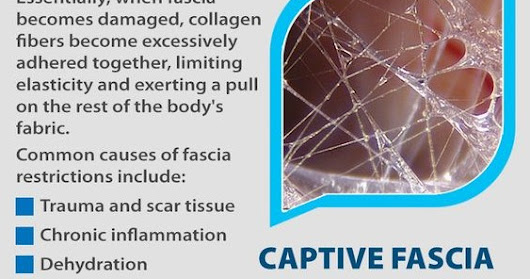 Fascia's Role in Stiffness, Tightness & Pain