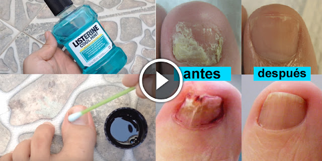 How To Get Rid Of Toenail Fungus, Home Remedies!
