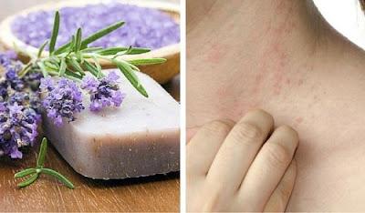 Savon fait maison spéciale pour la peau atopique ou la dermatite