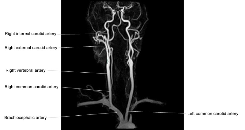 NECK CT ANGIOGRAM ANATOMY | Radiology Anatomy Images