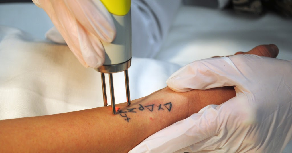 Healthy living news want to get rid of your tattoo read this for How to get rid of a tattoo at home