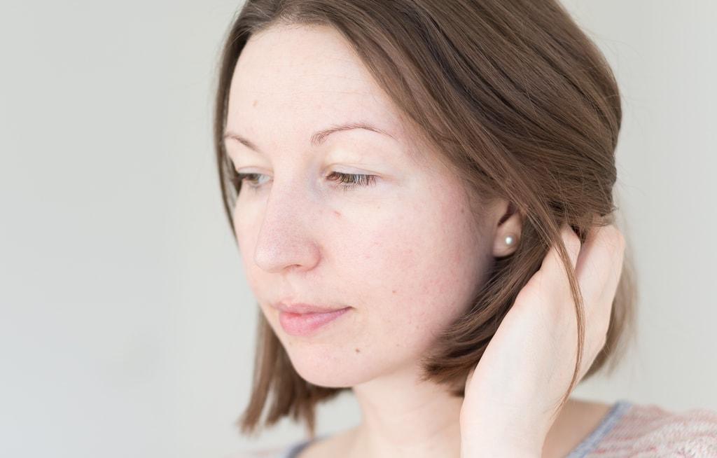 Rosazea Erfahrungsbericht Tipps Hautpflege und Lifestyle Management Gesicht ungeschminkt