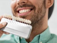Selain Pakai Pasta Gigi Pemutih, Terapkan Ini Agar Gigi Sehat dan Putih