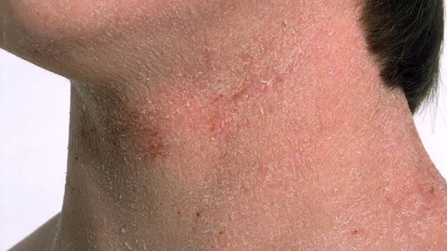 Thyroid Disease Can Cause Dry Skin Hair Loss And Weight