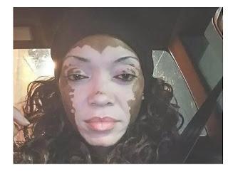 Vitiligo: Causes, Prevention, Diagnosis and Treatments