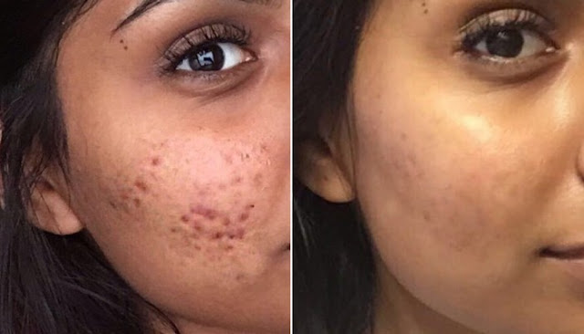 Best Skin Care Cystic Acne reviews