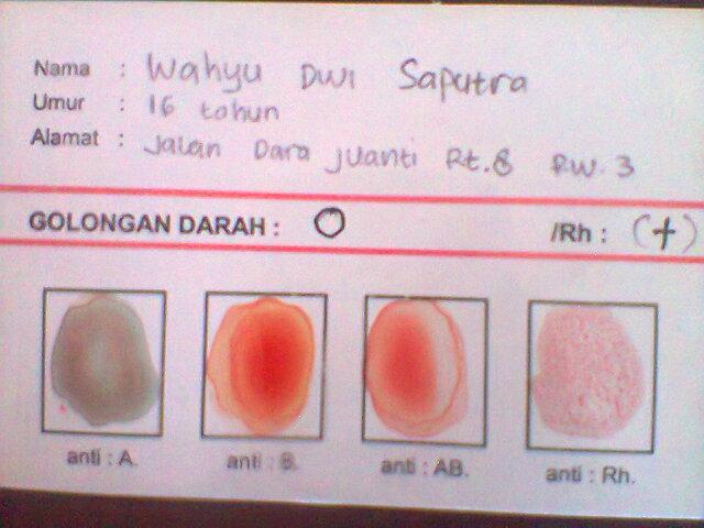 Jenis-jenis Golongan Darah Lengkap !!