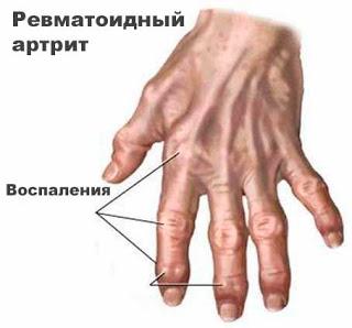 Ревматоидный артрит - программа излечения
