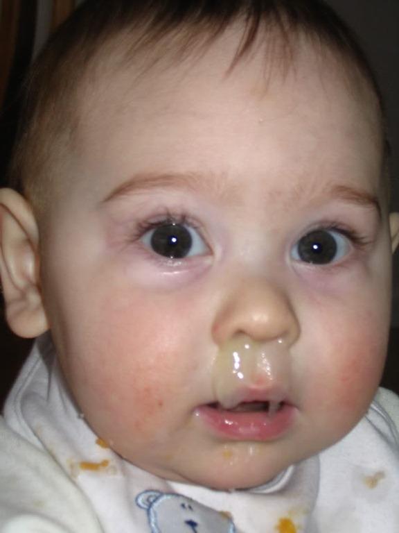 Reflexiones De Un Pediatra Curtido Los Lacteos Aumentan Los Mocos