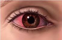 sakit mata