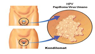 Obat Kutil Di Organ Intim Bintik Kasar