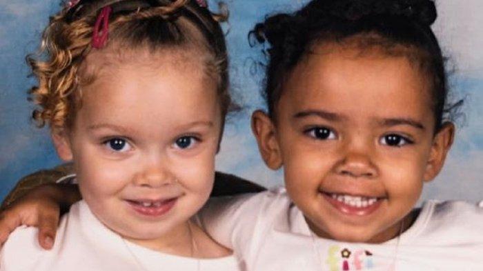 Peristiwa Aneh, Bayi Kembar tapi Beda Warna Kulit