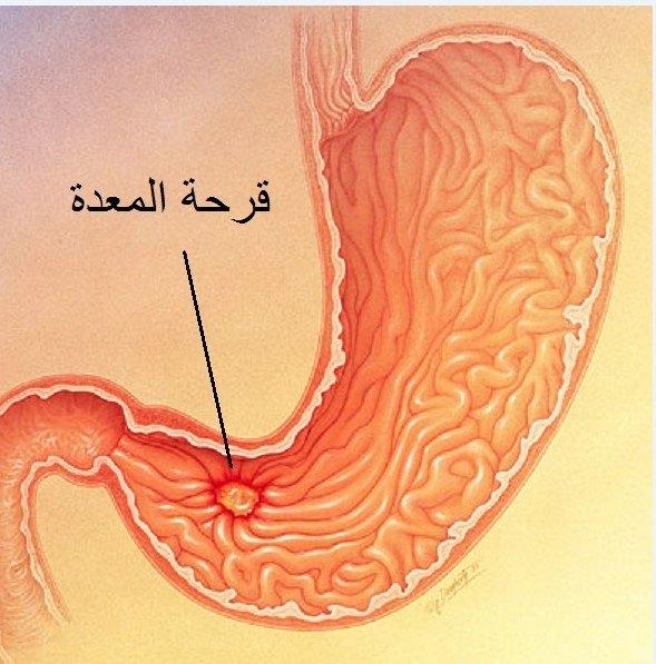 قرحة المعدة أسبابها وأعراضها وطرق علاجها