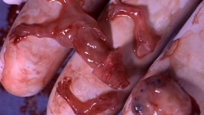 10 Razões para ser contra o aborto