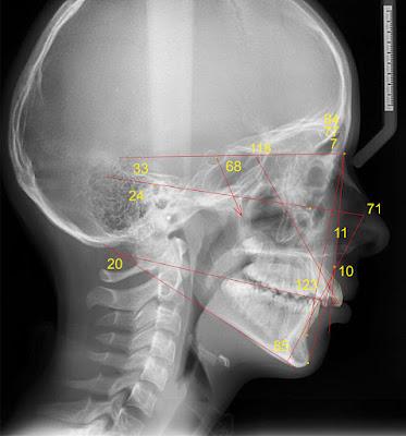 Телерентгенограмма в боковой проекции пациента с прогнатией
