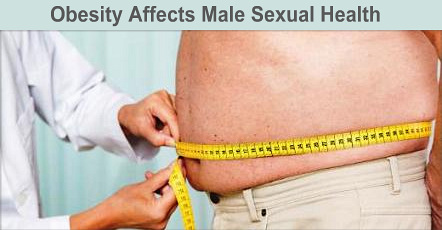 Obesity And Poor Male Sexual Health