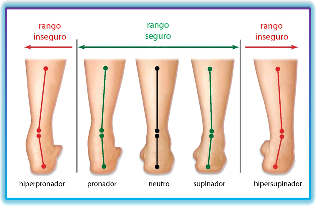 MAGIC FEET: IMPORTANCIA DE HACERSE UN ESTUDIO DE LA PISADA