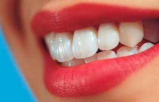 Cara-Memutihkan-Gigi-Dengan-Cepat-Dan-Efektif