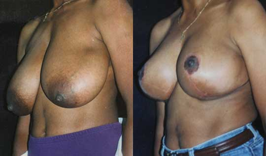 afro-american breast lift mastopexy Los Angeles