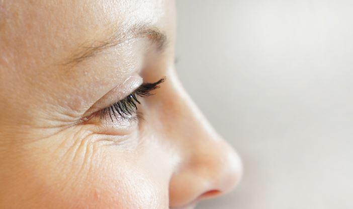 cara menghilangkan kerutan di mata