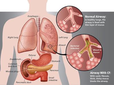 Obat Tbc Alami Paling Ampuh