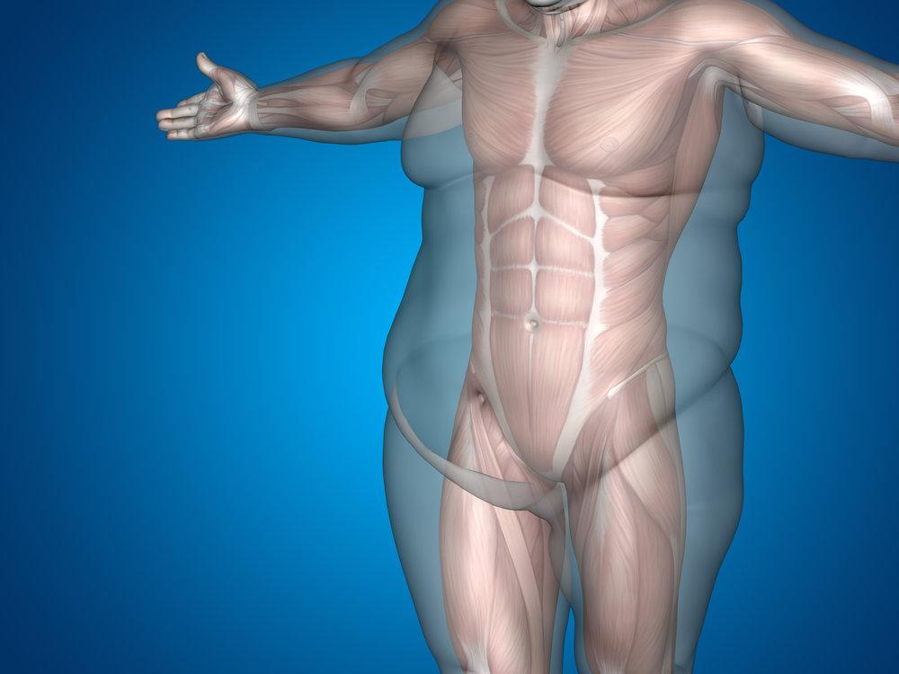 afvallen obesitas