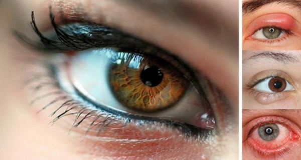 ochi caprui albastri verzi predispozitie imbolnaviri