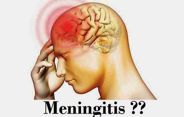 penyebab, gejala, dan pengobatan menigitis - RanaHerbal.com