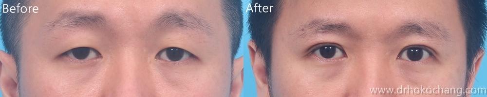 大小眼提眼肌手術台中推薦-ptosis03