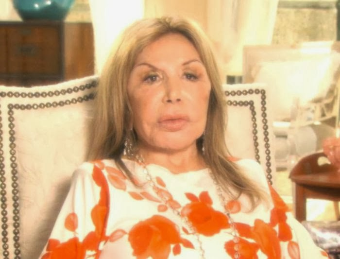 Elsa Patton The Worst Example Of Plastic Surgery Disaster