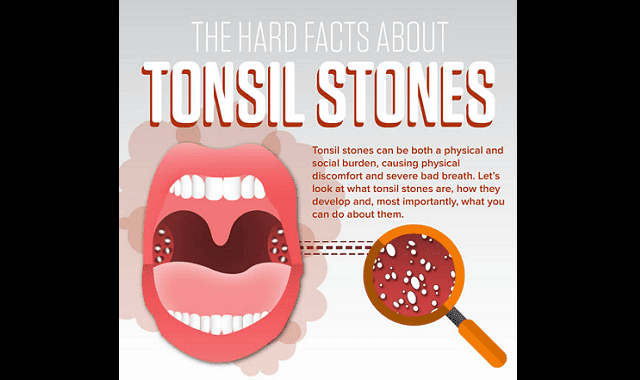 The Hard Facts About Tonsil Stones